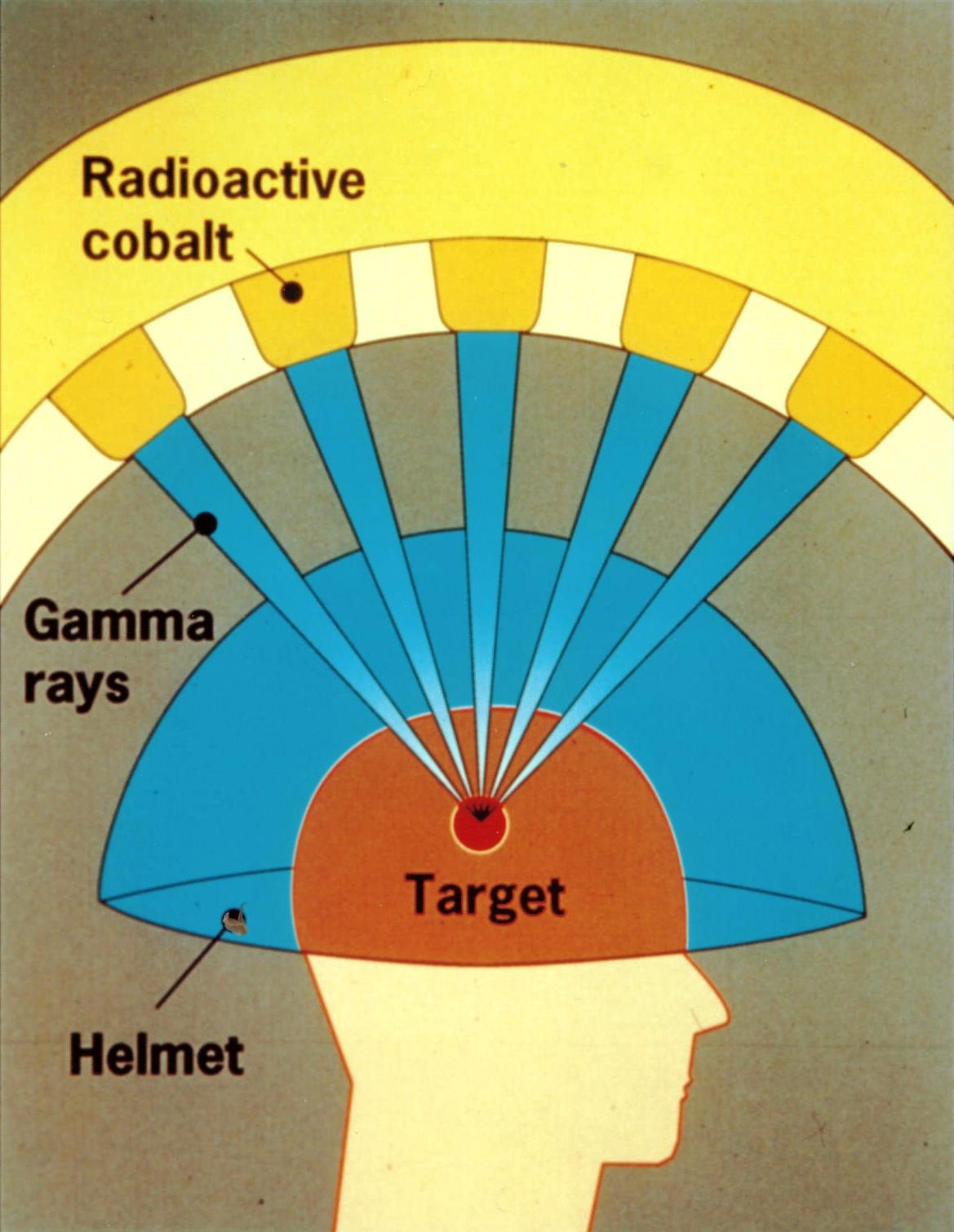 Принцип работы аппарата «гамма-нож»