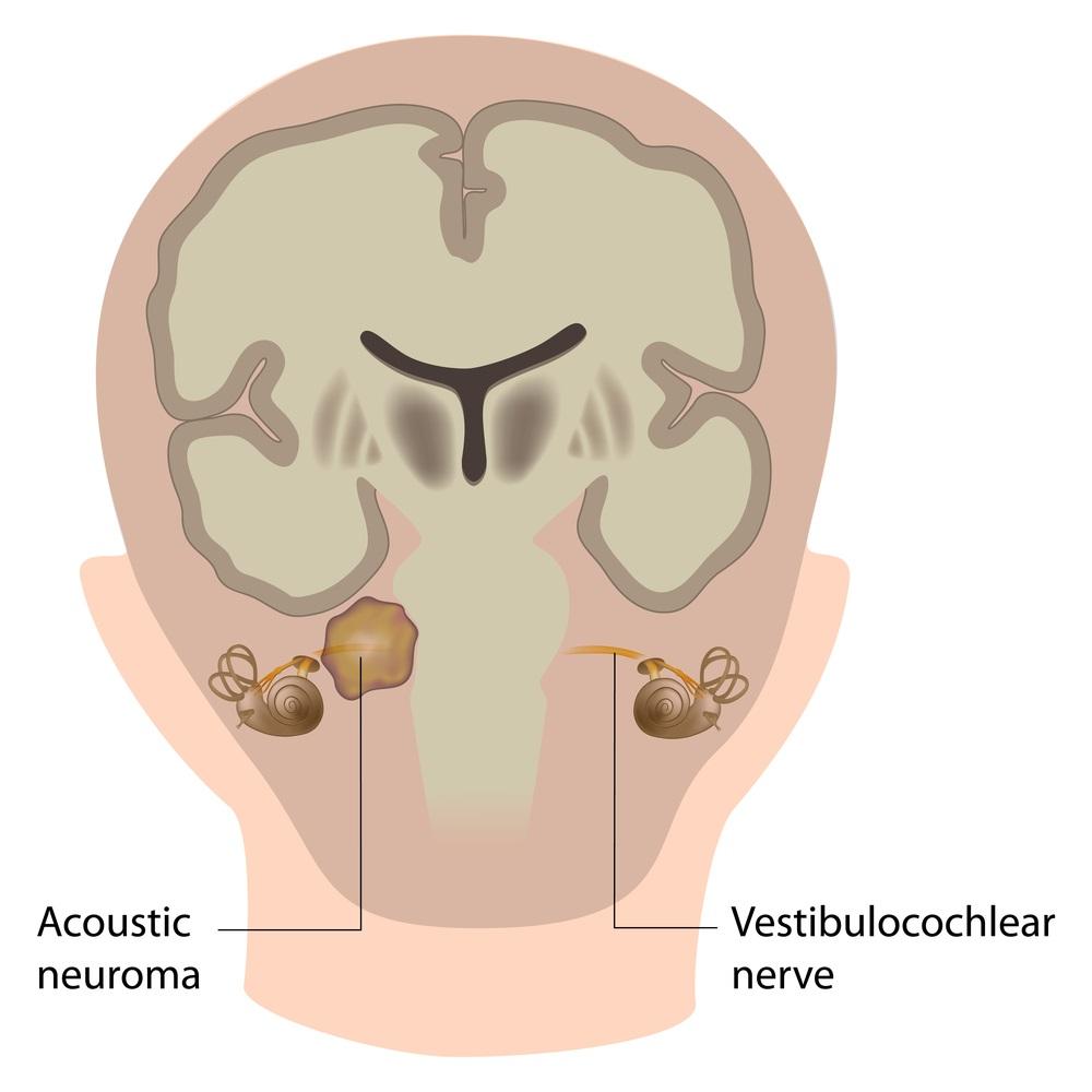 Das Akustikusneurinom (Vestibularisschwannom) ist ein seltener, gutartiger Tumor des Hör- und Gleichgewichtsnervs.