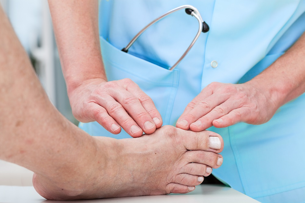 The doctor often recommends surgery to treat hallux valgus
