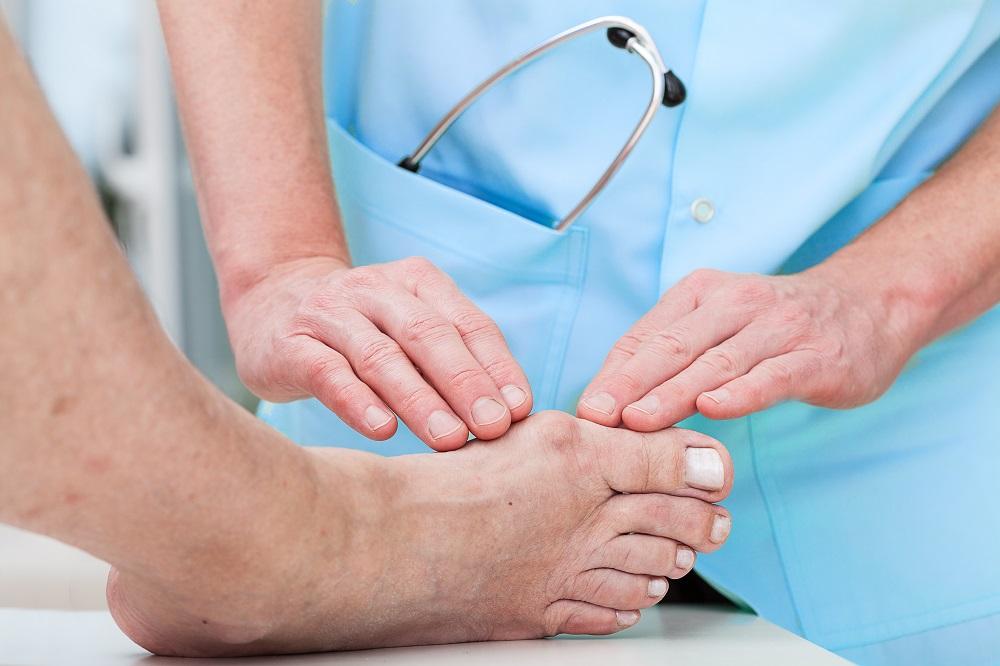 Врачи часто рекомендует операцию для лечения вальгусной деформации.