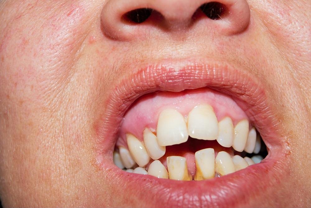 Пациент со стоматологическими проблемами.