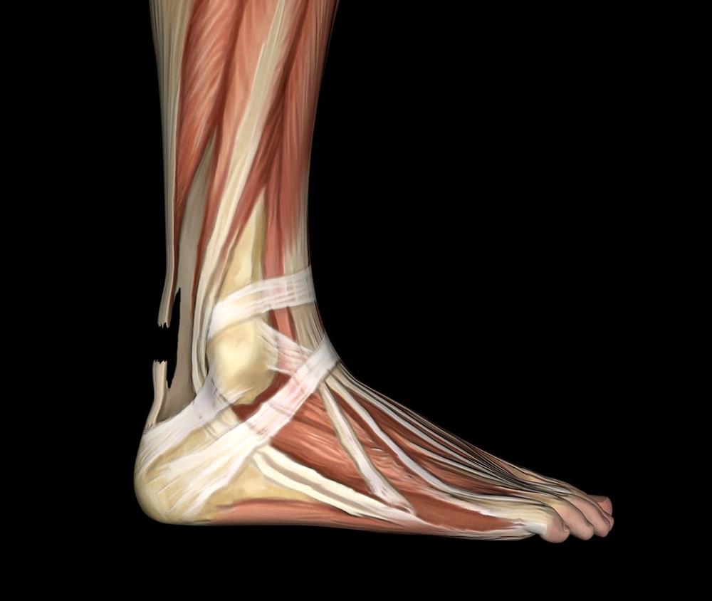 Die Achillessehne ist die stärkste Sehne des menschlichen Körpers.
