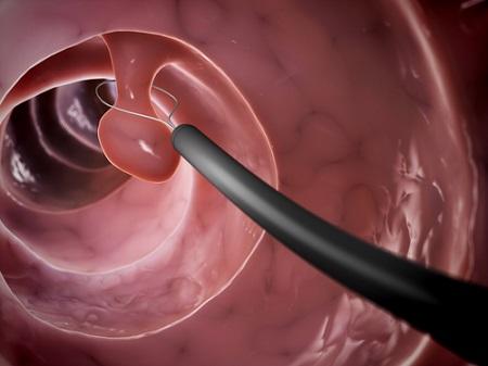 Эндоскопическое удаление опухоли