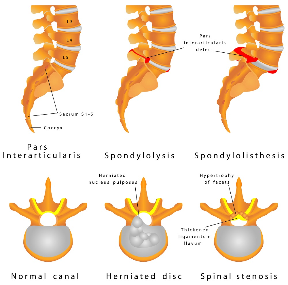 Spondylolisthesis - a defect in the bony ring comprising the spinal column