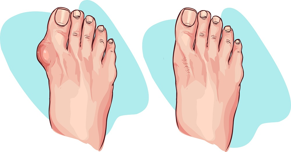 Foot with hallux and healthy foot