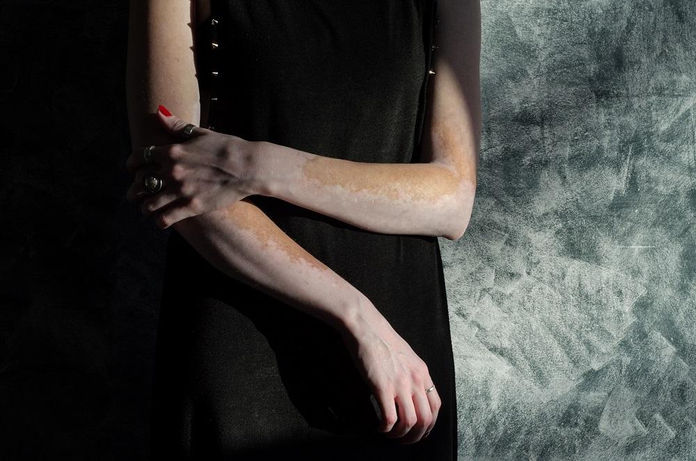 Витилиго проявляется в виде молочно-белых пятен на коже.